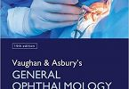 Vaughan & Asbury's General Ophthalmology pdf